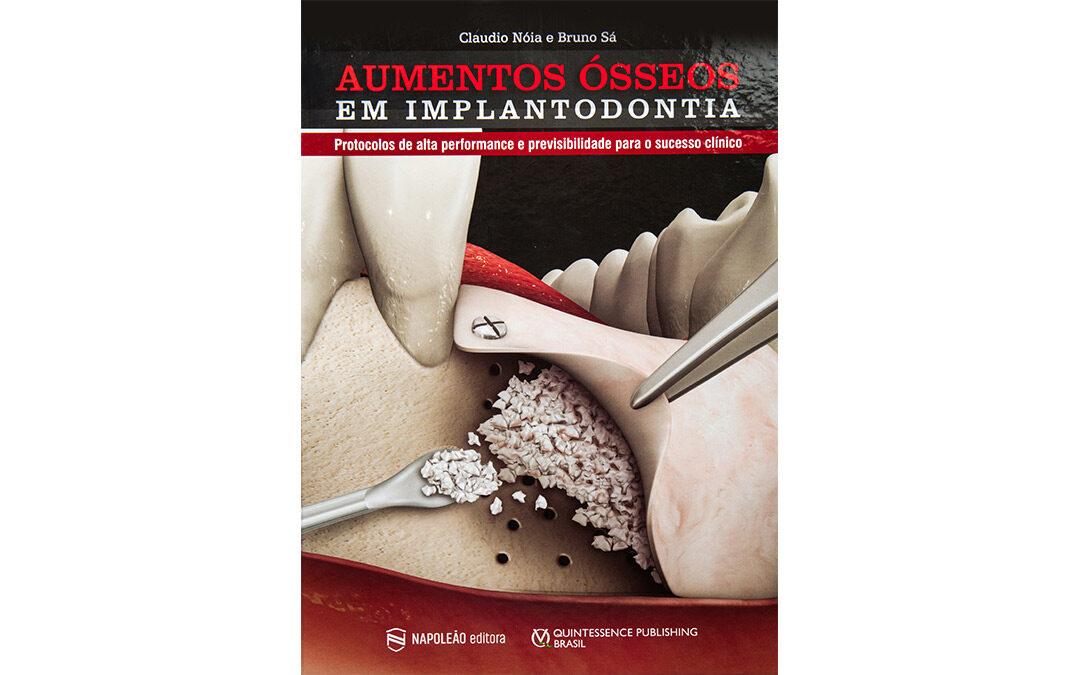 Aumentos Ósseos em Implantodontia– Capítulo 15